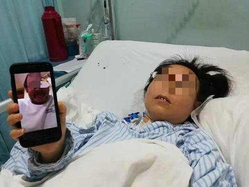 徐女士远在美国的丈夫对湖南省人民医院医务人员的精湛技术十分感激。.jpg